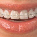 ortodoncia-foto-1